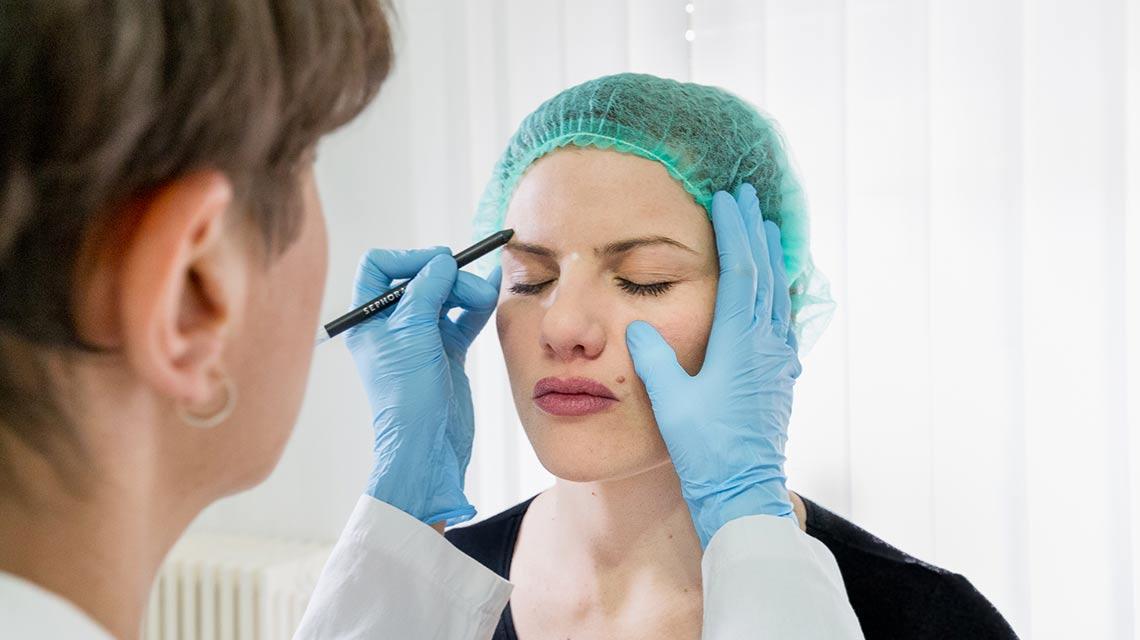 Botulino botox dermatologa Bari Valeria Colonna