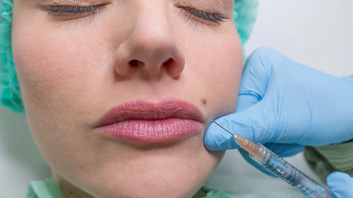 Filler a base di acido ialuronico dermatologa bari Valeria Colonna