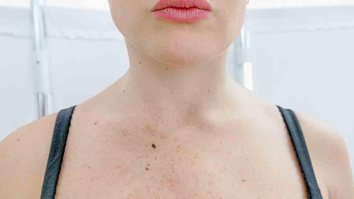 Macchie e mielasma Studio dermatologico Bari Valeria Colonna