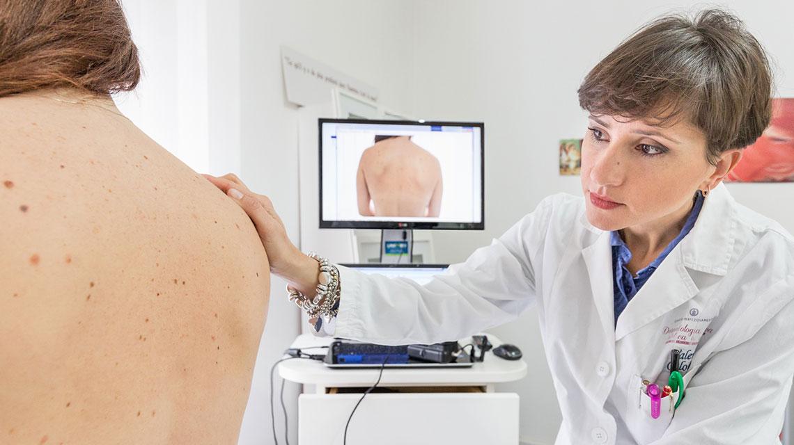 Mappatura nevi Studio dermatologico bari Valeria Colonna