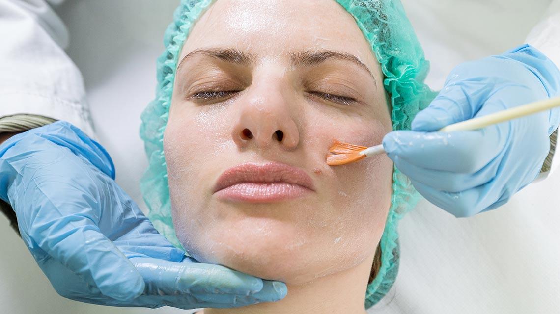 Peeling Studio dermatologico Bari Valeria Colonna