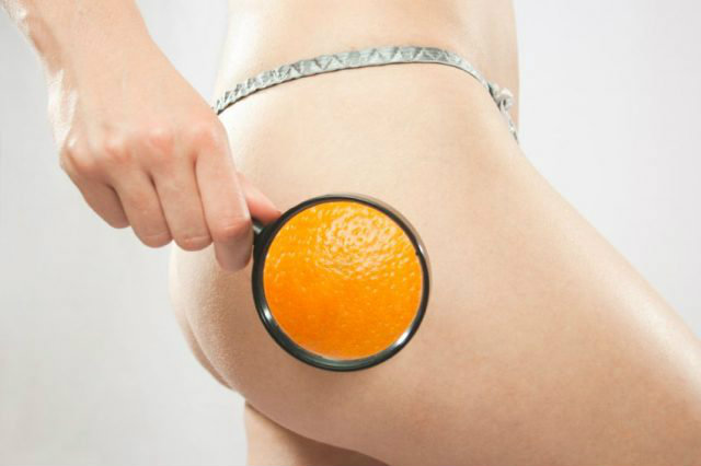 cellulite come curare valeria colonna dermatologa