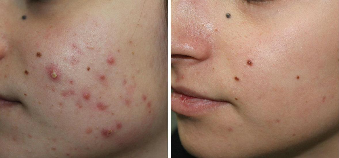dermatologa-valeria-colonna-acne-trattamento