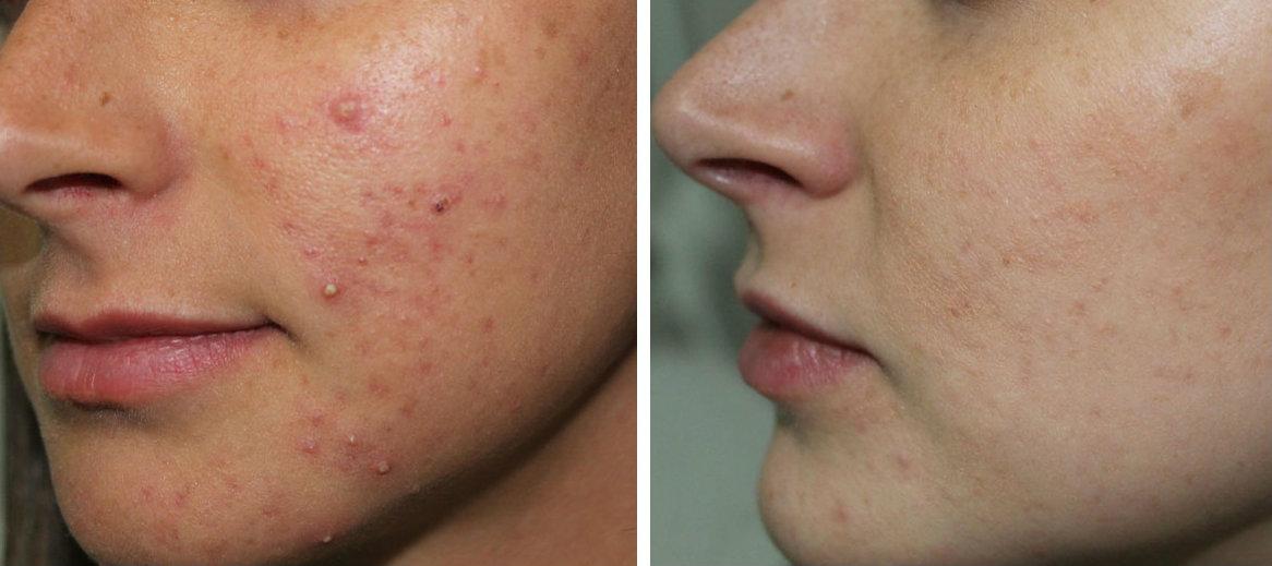 valeria-colonna-dermatologa-acne