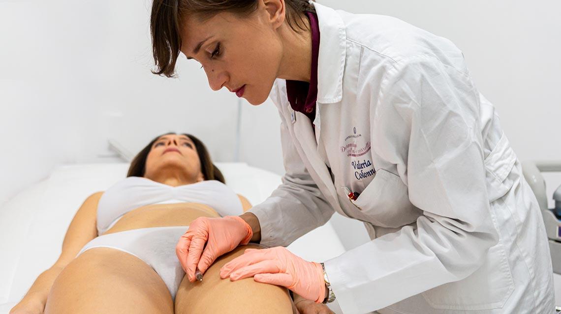 Carbossiterapia Studio dermatologico Bari Valeria Colonna